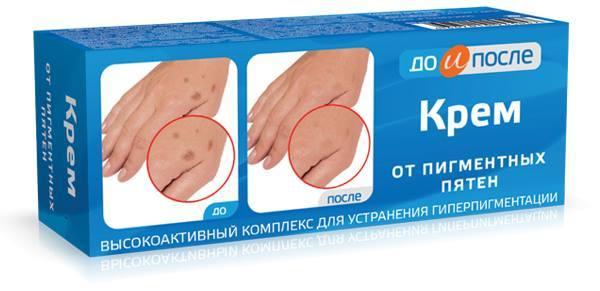Kem đặc trị đồi mồi tay chân KPEM