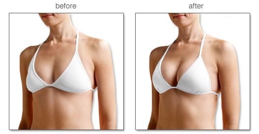 Kem nở ngực Breast Enhance Cream nhanh chóng an toàn