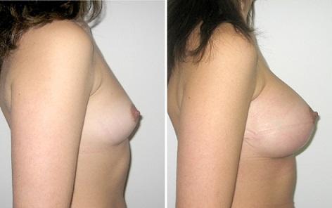 Bộ kem serum nở ngực Fillerina Volume Seno