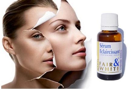 Fair & White Brightening Serum Tinh chất trị nám và làm trắng da