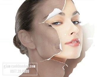 bộ mỹ phẩm kem trị nám La Bella đã mang lại hiệu quả cao và sự hài lòng tuyệt đối cho người sử dụng