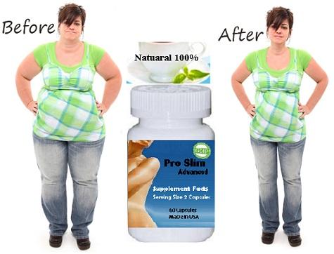 viên Pro Slim Advanced là thuốc giảm cân có hiệu quả cao nhất