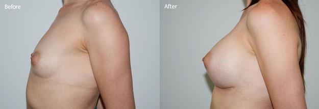 Sản phẩm giúp ngực bạn to tròn hơn, ngực lớn nhanh hơn, ngực tăng 2-3 size áo CUP ngực chỉ trong một tháng