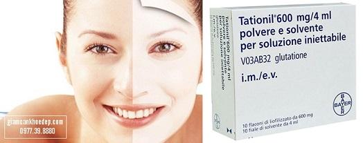 thuốc tiêm trắng Tationil bayer
